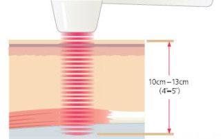 muli-radience-laser-treatment-san-diego